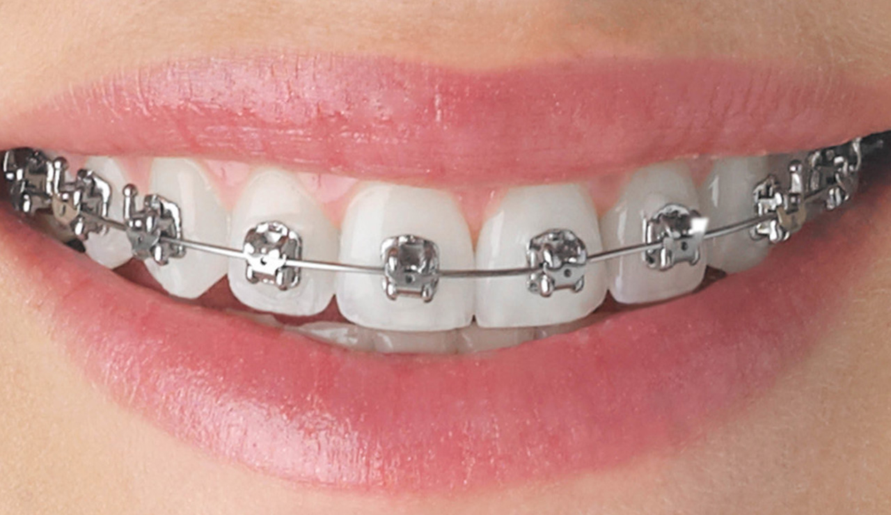 Guest Blog-An Insight to Dental Braces Treatment in Kolkata