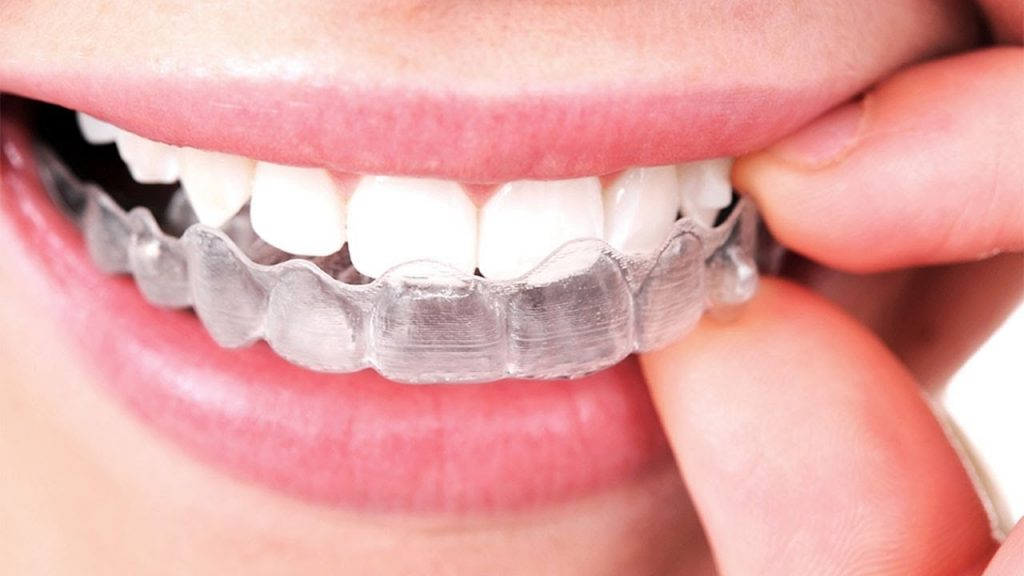 Guest Blog: Upcoming Trend of Invisible Dental Braces in Kolkata